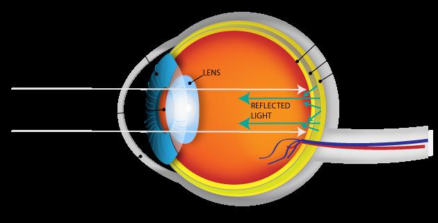 eye_diagram